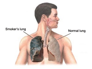 Lungs of a Smoker-Action Wanted
